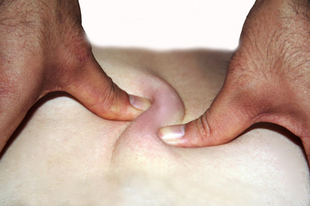 Praxis Tuina Qigong Massage Tel 0163 88882